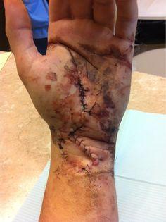 axe wound stitches