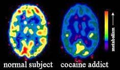 brain slices - Google Search