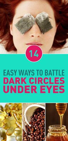 14 Easy Ways To Battle Dark Circles Under Eyes Beauty Care, Beauty Skin, Health And Beauty, Beauty Hacks, Beauty Tips, Fast Weight Loss Tips, How To Lose Weight Fast, What Causes Hair Loss, Advanced Beauty