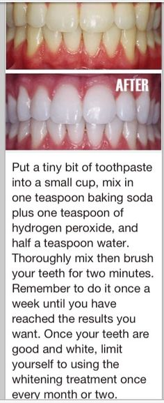 White teeth, just tried it! Works noticed a difference after one time!!