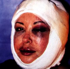 orlan - plastic surgery on herself