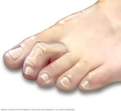 Hammertoe and Mallet Toe Symptoms, Causes, Diagnosis and Treatment - Natural Health News Natural Cures, Natural Health, Hammer Toe Surgery, Pointe Shoes, Health Advice, Toe Nails, It Hurts, The Cure, Pie