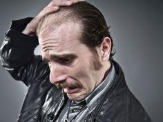Hair Care: Summer Hair Problems in Men #hair #hairloss #hairgrowth #beauty #health