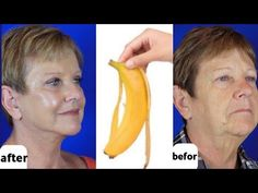 Japanese secret to looking 10 years younger than your age/anti aging remedy to remove wrinkles - YouTube Dry Hands Remedy, Anti Aging, Natural Skin Tightening, Facial Tips, Les Rides, Wrinkle Remover, Homemade Skin Care, Face Care, Health And Beauty