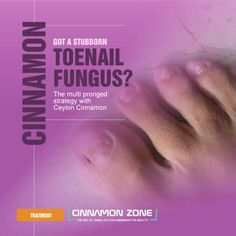 Complete instructions on how to use Ceylon Cinnamon as a fast effective way to treat a stubborn toenail fungus.