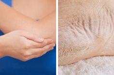 Descubre las mejores recetas naturales para suavizar la piel seca de los codos y talones. ¡No dejes de probarlo!