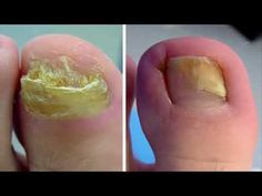 Elimine los hongos en las uñas delos pies para siempre con estos 5 remedios caseros - YouTube