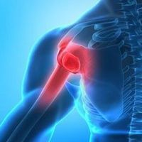 Anterior shoulder pain is often a sign of some degree of shoulder impingement. Here are three steps to deal with it. My Shoulder Hurts, Shoulder Anatomy, Shoulder Surgery, Hip Problems, Dieta Detox, Handmade Cosmetics, Emotional Pain, Ivf Clinic, Physical Therapy