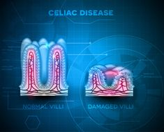 Curing Celiac Disease Using Holistic Naturopathic Techniques http://www.corespirit.com/curing-celiac-disease-using-holistic-naturopathic-techniques/ Celiac disease effects about 3,000,000 people in the United States, and it becomes more prevalent each year. As with practically all modern epidemics, lifestyle and diet are very closely related to it. Celiac disease needs not be as horrible as the medical establishment portrays it to be. It is...