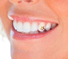Jewelry OFF! Dental Jewely fixing at smilestylers Diamond Grillz, Diamond Teeth, Gems Jewelry, Charm Jewelry, Tooth Jewelry, Jewellery, Tooth Gem, Beautiful Teeth, Michelle Phan