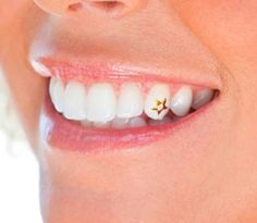 #Teeth #Jewelry #Diamonds