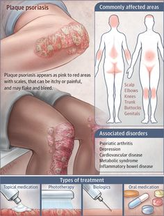 Psoriasis is a common condition where the skin gets red and scaly; psoriasis can cause itching, discomfort, and sometimes pain.Psoriasis affects to of the Plaque Psoriasis, Psoriasis Cure, Psoriasis Remedies, Nail Psoriasis, Psoriasis Symptoms, Dermatology Nurse, Medical Anatomy, Medical Facts, Med School