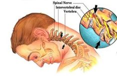 Neck and light spine exercises to prevent migraines.