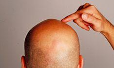 Acacia Medical tillhandahåller de bästa lösningarna håravfall och hårtransplantation för att stoppa skallighet och håravfall genom flera effektiva tekniker.  http://www.akaciamedical.com/hartransplantation