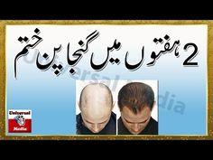 Ganjapan Ka Ilaj In Urdu - Hair Loss Treatment For Men At Home - Universal Media -  How To Stop Hair Loss And Regrow It The Natural Way! CLICK HERE! #hair #hairloss #hairlosswomen #hairtreatment Universal Media Channel Provided you the wide range of videos about Health Science , Desi Ilaj , Homo-yo P ethic , and Home Made Tricks . Universal Media is a Hindi/Urdu/English... - #HairLoss