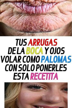 Your wrinkles in your mouth and eyes fly like doves with just .- tus arrugas de la boca y ojos volar como palomas con solo ponerles esta recetita… Your mouth wrinkles and eyes fly like pigeons just by putting this recipe. Beauty Tips For Face, Beauty Secrets, Beauty Hacks, Face Tips, Beauty Care, Beauty Skin, Honey Face Mask, Stress, In Cosmetics