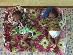 Chirurgia plastica umanitaria in Togo. Casi clinici mai visti prima