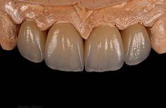 Maryland, Dental Lab Technician, Dental Photography, Dental Anatomy, Dental Laboratory, Dental Art, Dental Bridge, Dental Crowns, Dental Services