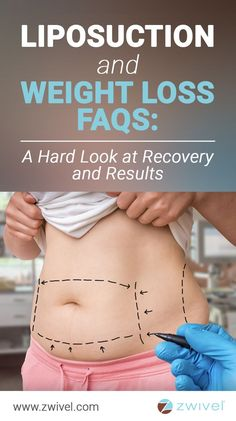 and Weight Loss FAQs: A Hard Look at Recovery and Results According to the American Society for Plastic Surgery's (ASPS) 2016 Cosmetic Surgery Statistics, there were over liposuction procedures performed last year, making it the top procedure among Liposuction Procedure, Lymphatic Drainage Massage, Surgery Recovery, Tummy Tucks, Body Contouring, Cosmetic Dentistry, Laser Hair Removal, Ukraine, Top