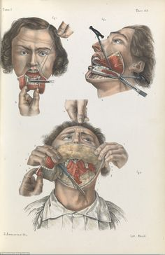 The next time you find yourself squirming at the thought of going to the dentist or having an injection, just remember how lucky you are to live in an age of anaesthetics, decent sanitation, and all-round high levels of medical expertise. This certainly has not always been the case – a fact revealed in all its gruesome glory by these gut-wrenching images of 19th-century medical procedures.