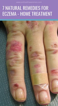 7 Natural Remedies for Eczema – Home Treatment Home Remedies For Allergies, Home Remedies For Eczema, Natural Remedies, Magnesium Bath, Green Tea Drinks, How To Treat Eczema, Bath Recipes, Natural News, Home Treatment