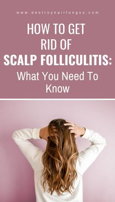 Scalp folliculitis is an inflammation of the hair follicles on the scalp. It may be due to a viral bacterial or fungal . Sores On Scalp, Itchy Scalp, Hair Scalp, Hair Follicles, Scalp Folliculitis, Medical Jokes, Medical Mnemonics, Bald Patches, Top