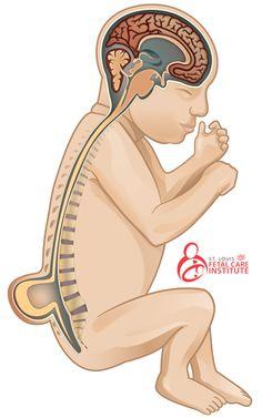 What is myelomeningocele (spina bifida)?