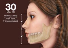 Dentaltown - 30 year old: Facial structures are properly supported and in natural proportion maintaining a youthful appearance.