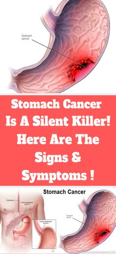 Signs And Symptoms of Stomach Cancer ! – Alia Goonan Signs And Symptoms of Stomach Cancer ! Signs And Symptoms of Stomach Cancer ! Flat Lay Fotografie, Make Up Tutorials, Endocannabinoid System, How To Remove, How To Get, Types Of Cancers, Signs And Symptoms, Bodybuilding Motivation, Social Networks