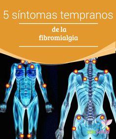 5 síntomas tempranos de la fibromialgia  La fibromialgia es una enfermedad reconocida por todas las organizaciones médicas (y por la propia Organización Mundial de la Salud desde 1992) y cuya prevalencia es, sin duda, muy frecuente en la mujer.