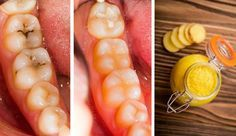 ¼ teaspoon of Coconut Oil, ¼ teaspoon of Turmeric, 2 drops of Clove Oil, A pinch of Salt. Make toothpaste