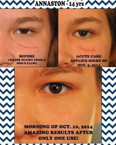 One use of Rodan and Fields Acute Care Skin Care Regimen, Skin Care Tips, Rodan And Fields Redefine, Rodan Fields Skin Care, Redefine Regimen, Stretch Marks On Thighs, After Surgery, Roden And Fields, Rodan And Fields Consultant