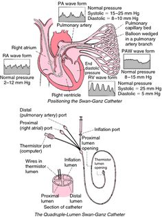 """Swan-Ganz catheter 