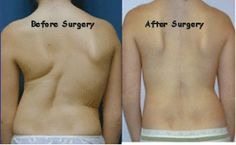 Patients who undergo minimally invasive spine surgery in Los Angeles often witness an extremely speedy recovery.  Before and after