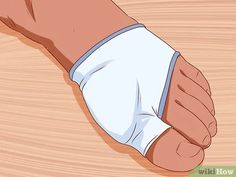 How to Get Rid of Bunions. A bunion is a bony lump that forms at the base joint in the big toe. Bunions form when tight or high-heeled shoes, an injury, or a person's inherited bone structure result in the big toe being pushed toward the. Bunion Exercises, Bunion Remedies, Nicole Sheridan, Get Rid Of Bunions, Bunion Pads, Family Nurse Practitioner, Gel Toes, Foot Pain, Yoga