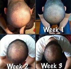 Regenerate hair in those balding areas with our Hair Skin & Nails.