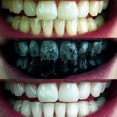 Charcoal Teeth Whitening Toothpaste, Tansmile Natural Activated Charcoal Toothpaste Mint Fluoride Free Toothpaste Bad Breath and Teeth Stains Remover Toothpaste (Pack of Activated Charcoal Benefits, Activated Charcoal Teeth Whitening, Charcoal Toothpaste, Teeth Whitening Remedies, Natural Teeth Whitening, Whitening Kit, Teeth Implants, Dental Implants, Dental Surgery