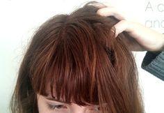 Aujourd'hui un sujet un peu spécial et sensible : la fameuse dermite séborrhéique du cuir chevelu !  Ah oui, cette infamie qui empoisonne facilement la vie. Des pellicules grasses, un cuir chevelu irrité et qui démange, parfois même des touffes de cheveux qui tombent…