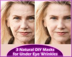 The most common place for wrinkles is the area under the eyes. Appearance of wrinkles is possible even if you're still young and that's one of the reasons you should start doing everything you can to prevent it. Preventing, reducing or even completely removing the wrinkles under the eyes is possible by use these 3 miraculous masks. #wrinkles #beatuy #natural_remedies #face_mask