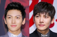 Ji Chang-wook Before and After Plastic Surgery