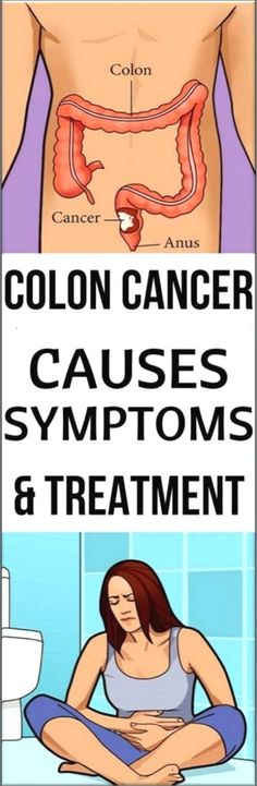 Find Out What Causes the Colon Cancer and How To Treat it