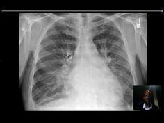 Adults stenosis congenital pulmonary