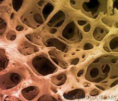 Bone tissue. Coloured scanning electron micrograph (SEM) of cancellous (spongy) bone. Bone tissue can be either cortical (compact) or cancellous. Cortical bone usually makes up the exterior of the bone, while cancellous bone is found in the interior. Cancellous bone is characterised by a honeycomb arrangement, comprising a network of trabeculae (rod-shaped tissue). These structures provide support and strength to the bone. The spaces within this tissue contain bone marrow (not seen), a ...