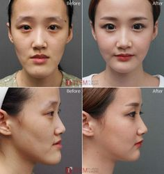 [Facial contouring -Two Jaw surgery] Plastic surgery in Korea, Cosmetic surgery . [Facial contouring -Two Jaw surgery] Plastic surgery in . Types Of Plastic Surgery, Plastic Surgery Korea, Chin Reduction Surgery, V Line Surgery, Facial Procedure, Facial Bones, Cosmetic Procedures, Face Contouring, Rhinoplasty