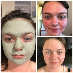 Super gentle on the skin, Safety-Allergy-Dermatologist Tested and helps removes flaky skin. I cannot recommend this product enough Nu Skin, Nuskin Toothpaste, Marine Mud Mask, Glacial Marine Mud, Waterproof Makeup Remover, Flaky Skin, Healthy Skin Care, Epoch, Anti Aging Skin Care
