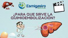 ¿Qué es la Quimioembolización?