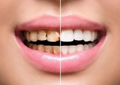 Natural Teeth Whitening Remedies Want a brighter smile? Find out which teeth whitening treatment might do the trick. - Want a brighter smile? Find out which teeth whitening treatment might do the trick. Teeth Whitening Remedies, Natural Teeth Whitening, Whitening Kit, Peau D'orange, Check Up, Healthy Teeth, Healthy Foods, White Teeth, Dental Implants