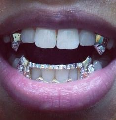 Image about lips in grillz 💖 by Nicola Marie on We Heart It Fang Grillz, Girl Grillz, Grillz For Girls, Gold Teeth Grillz, Gothic 3, Diamond Grillz, Diamond Teeth, No Ordinary Girl, Grills Teeth