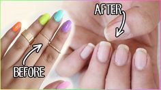 Cool HOW TO REMOVE FAKE NAILS: Kiss Glue On Nails, Gel Nails, Gel Polish etc!...