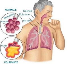 primavera polmonite atipica